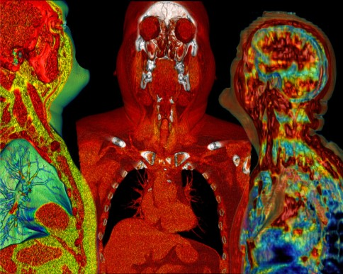 We Three Meet Again (Computed Tomography of the Head and Chest) Surface rendering of lungs, heart, and liver created in OsiriX composed and visually anonymized in GIMP