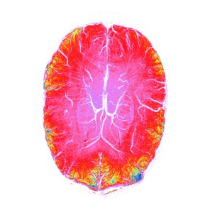 Swippy (7T Axial SWI image of the human brain) Susceptibility weighted images are particularly good at imaging blood vessels in the brain. In this image the blood vessels in the brain are bright white, surrounding by a riot of colours in the rest of the brain.