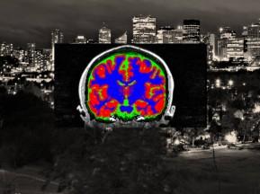 Brains over Edmonton